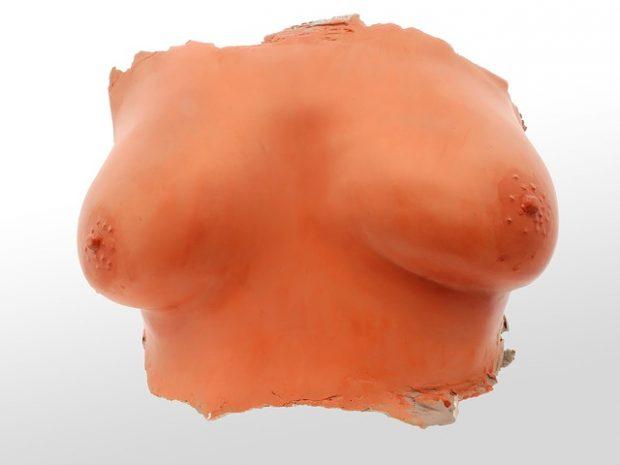 tissu mammaire